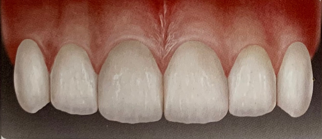 Como colocar funda dental 5