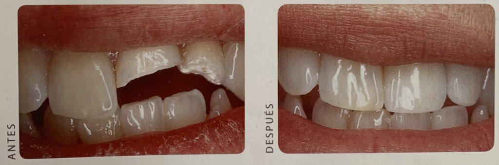 Corona diente roto natural