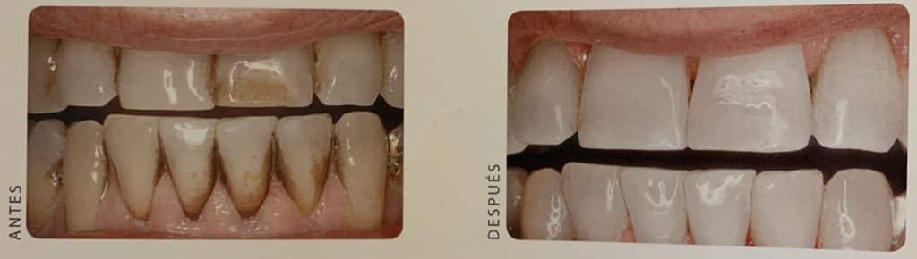 Dientes manchados | Estética Dental