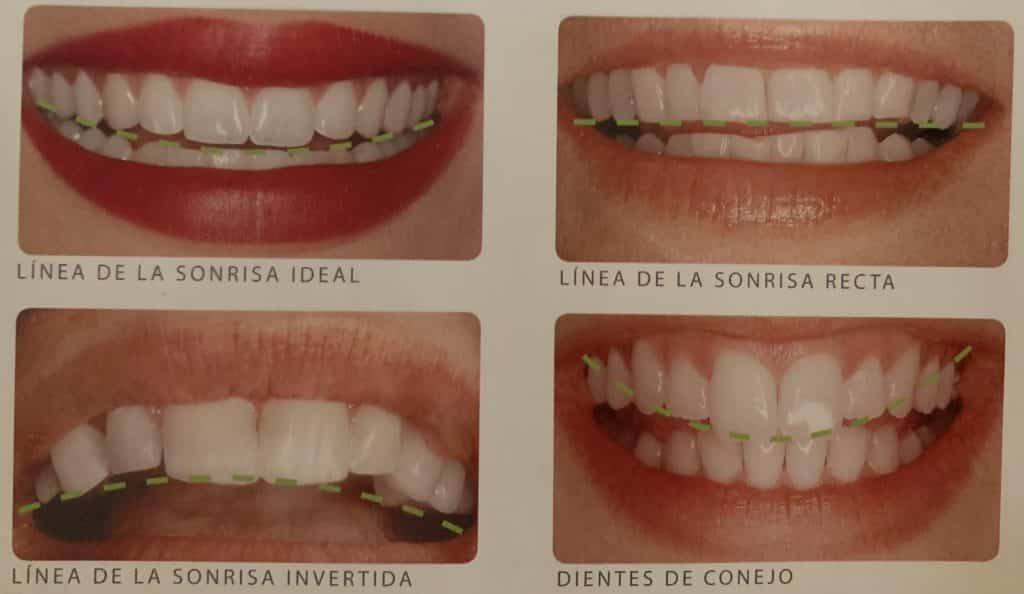 Clínica dental en Madrid 1