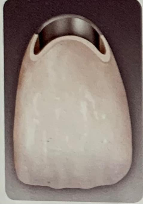 corona de metal y porcelana con uniones de porcelana