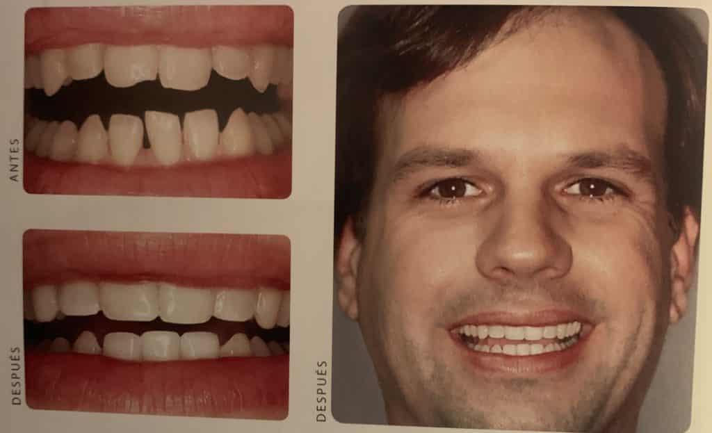 adhesión dental para arreglar espacio entre los dientes