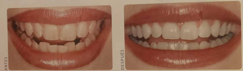 7 dientes mismo color